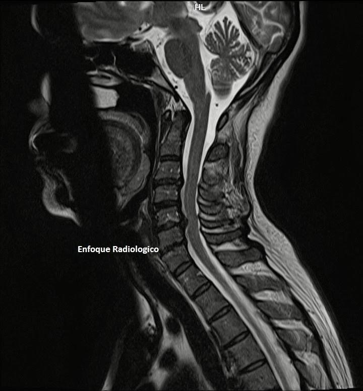 El complejo de los ejercicios a sheyno la osteocondrosis de pecho la tabla