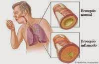 enfermedades sistemicas mal aliento