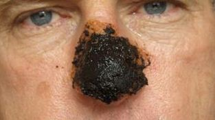 skin cancer pictures on face
