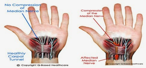 Apakah Penyakit Sindrom Carpal Tunnel (Carpal Tunnel Syndrome)?