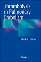 http://www.cheapebookshop.com/2016/01/thrombolysis-in-pulmonary-embolism.html