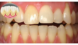 Ingin Hilangkan Plak Tanpa ke Dokter Gigi? Ini Caranya