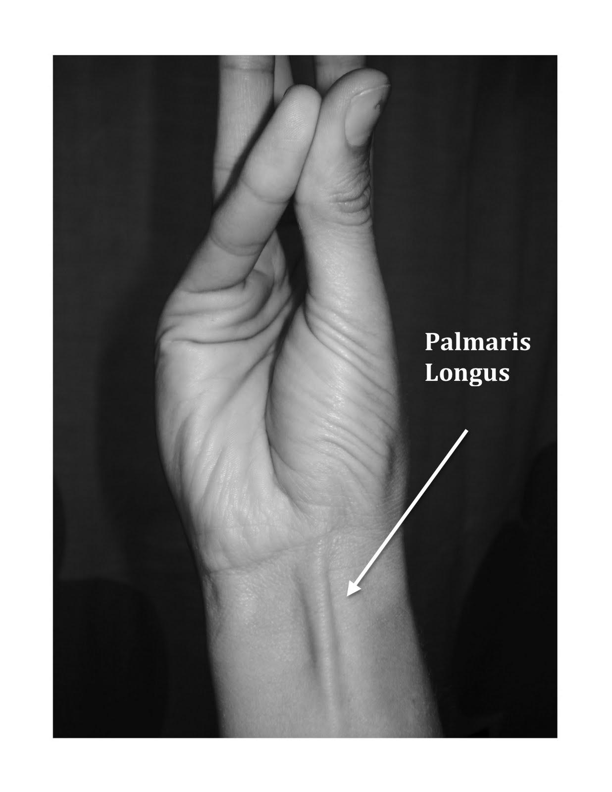 do YOU have a palmaris longus tendon?????