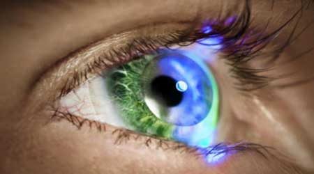 Can Everyone Use Free Samples Of Contact Lenses  Better Health