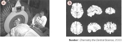 Alat Tomografi Emisi Positron (PET).