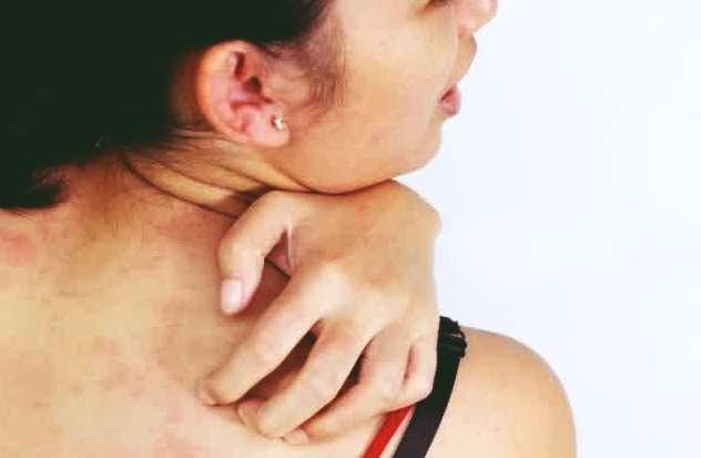 IMG penyebab dan cara mengobati panu, kada atau kurap akibat jamur di kulit tubuh