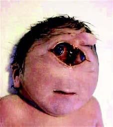 NurseTecmilenio: Genetic Mutations: Edwards syndrome