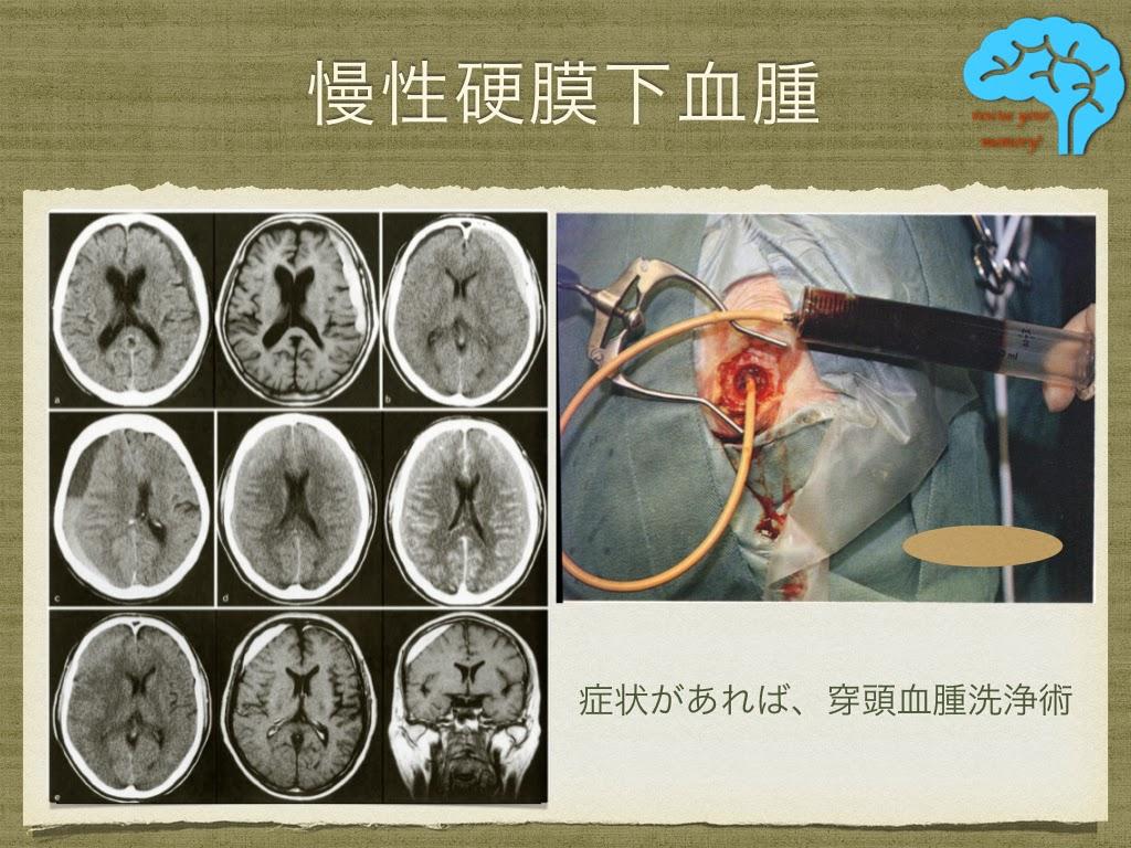 慢性硬膜下血腫の手術模様