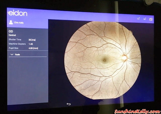 Vision Space Optometrist, Sunway Giza, SNRD, Sunglasses, Vision Space, Optometrist, eye retina examination