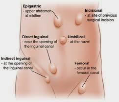 pengertian penyakit hernia