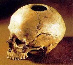 Operación de Cráneo en la Medicina Azteca
