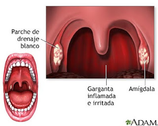 Nursing Diagnosis for Pharyngitis