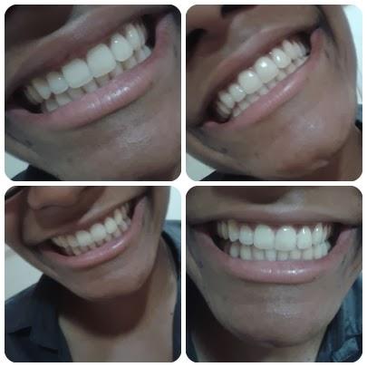 Testei Oral B 3d White Whitestrips Clareamento Dental Se Liga