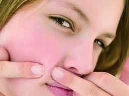Tips, 14, Cara, Menghilangkan, Jerawat, Pada, Remaja, Secara, Alami