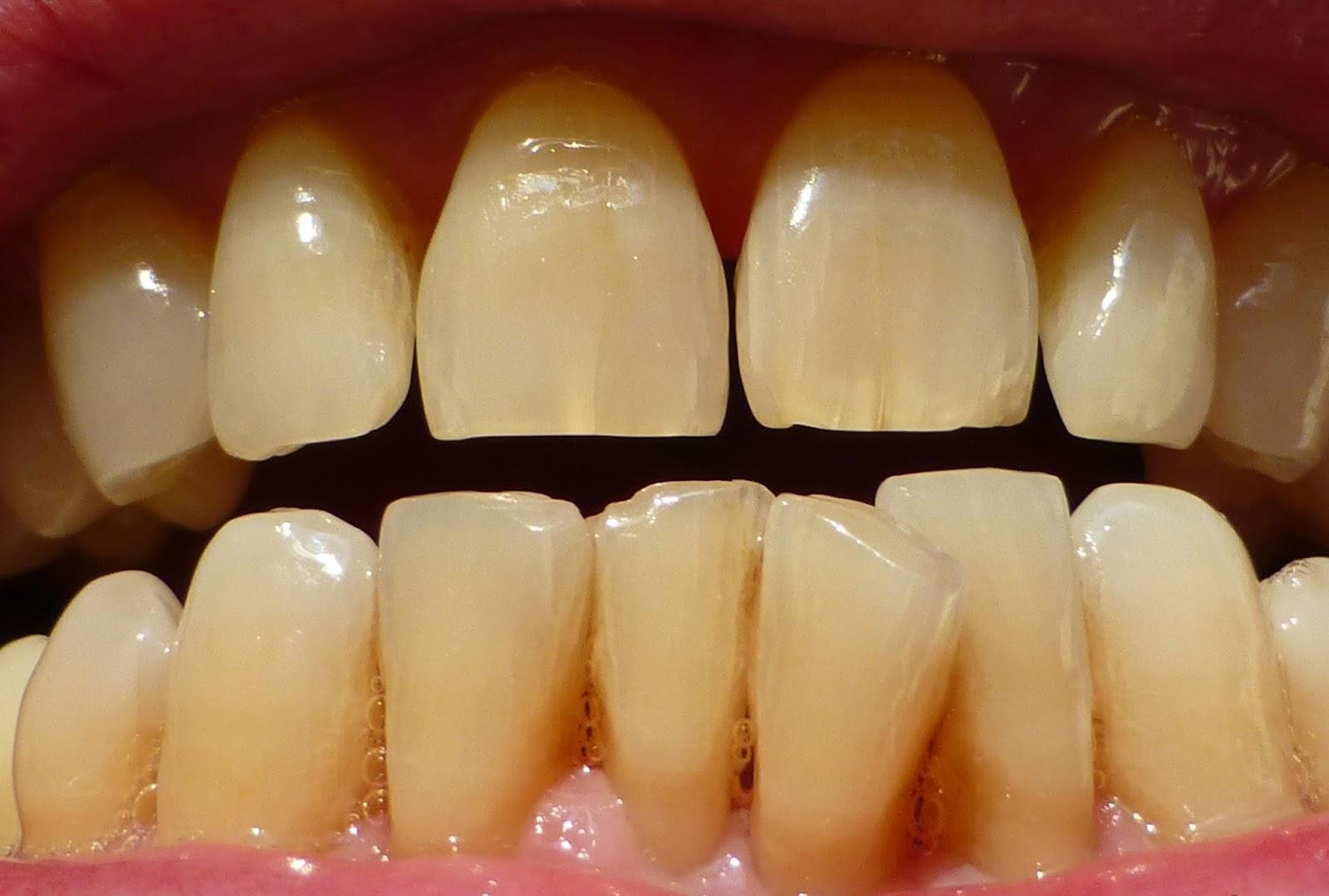 𝔹Í ℚ𝕌𝕐Ế𝕋 để có hàm răng TRẮNG như ca sĩ?? bạn đã thử chưa? 1