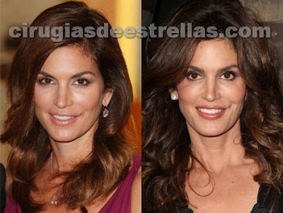 cindy crawford antes y despues