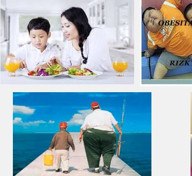 Cara Mengatasi Obesitas Secara Alami