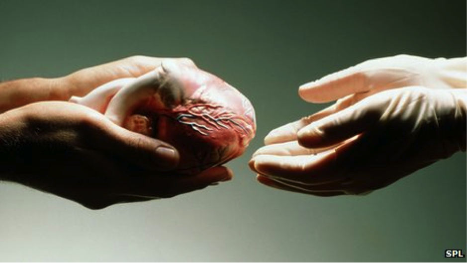 xenotransplants animal to human organ transplants essay Heart transplants heart transplants are now routine however, the first human-to-human heart transplant in 1967 by professor christiaan barnard in south africa was big news few people knew that the operation was the culmination of more than 60 years of preparatory animal research.