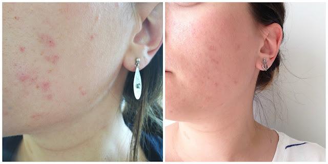 quels-cremes-pour-traiter-acne-adulte