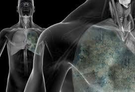 Tanda-Tanda Penyakit Kanker Paru-Paru Yang Perlu Diwaspai