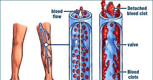 Nursing Care Plan: Nursing Diagnosis for Deep Vein Thrombosis (DVT)