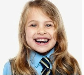 Age for Orthodontic Treatment