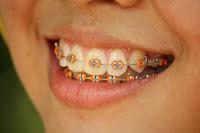 kawat gigi