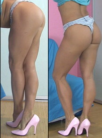 Shapely Calves