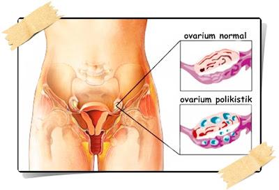 Pengobatan Sindrom Ovarium Polikistik Herbal