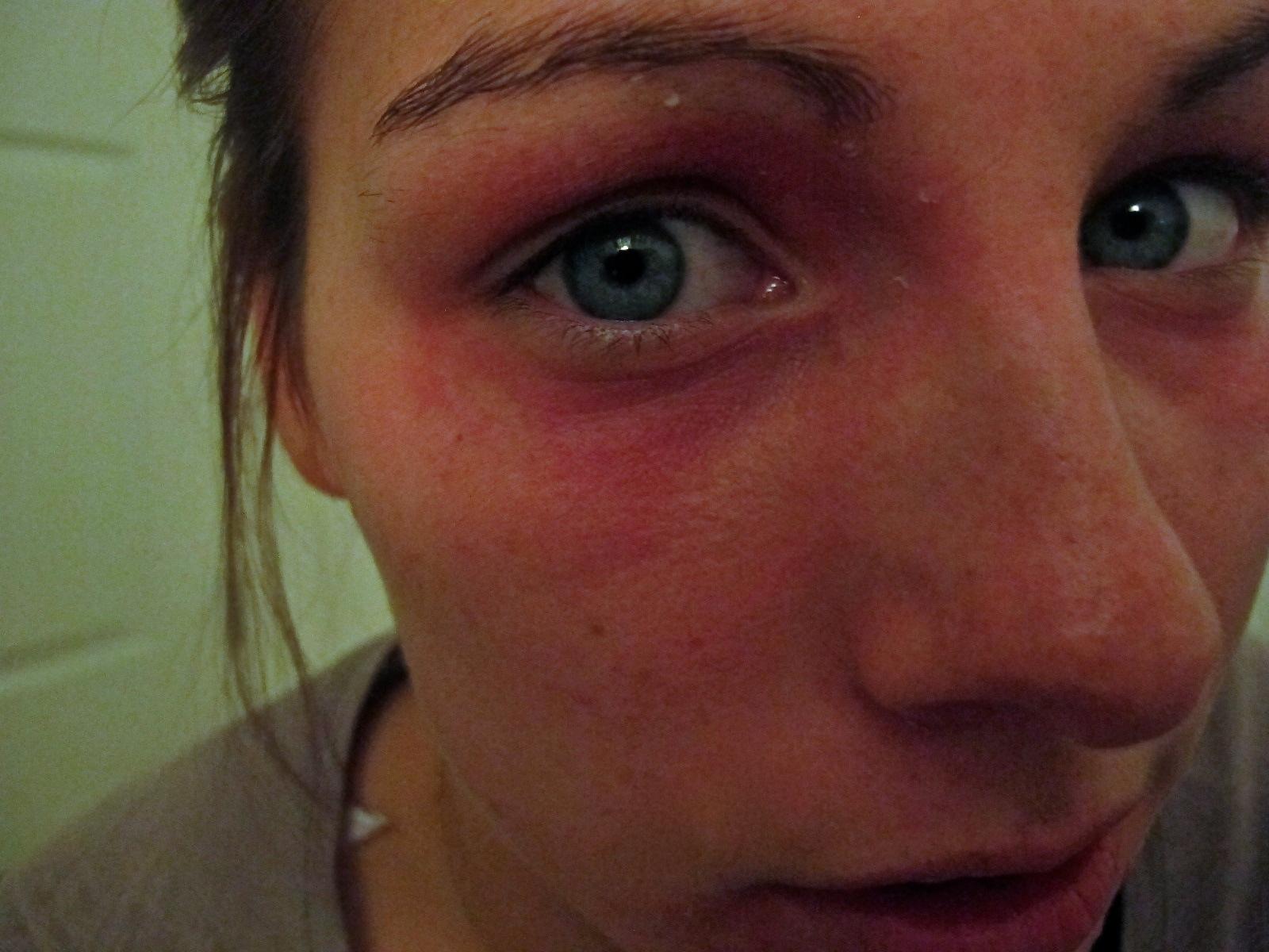 allergisk reaktion ansikte