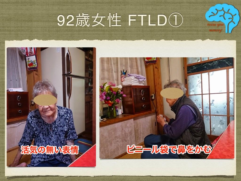 意味性認知症 92歳女性 活気のない表情