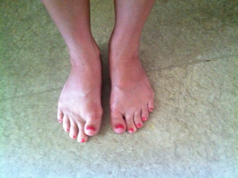 how to fix flat feet without surgery