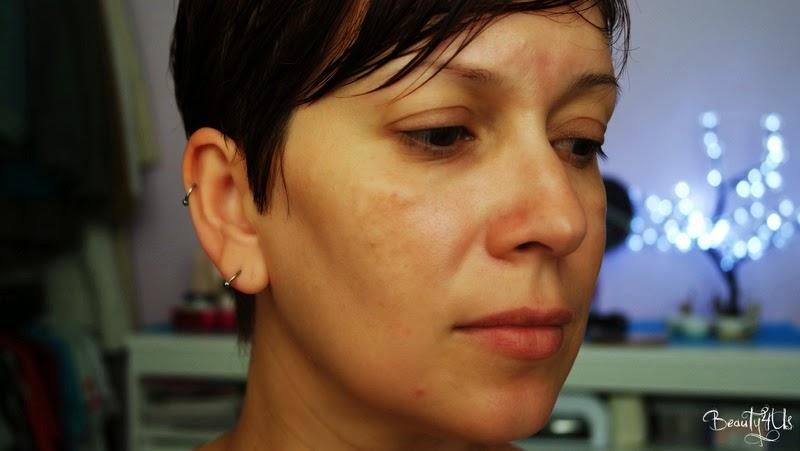 8 passos para tirar as manchas do rosto em casa