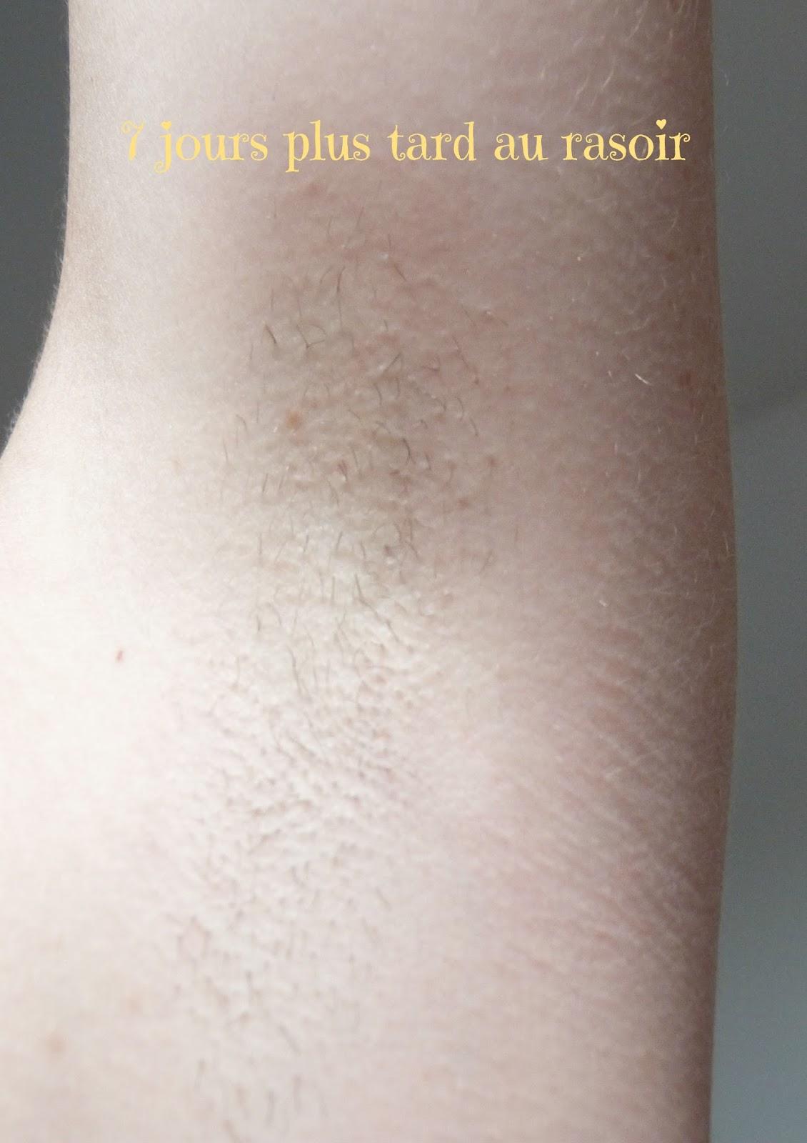 7 jours après la première épilation au rasoir