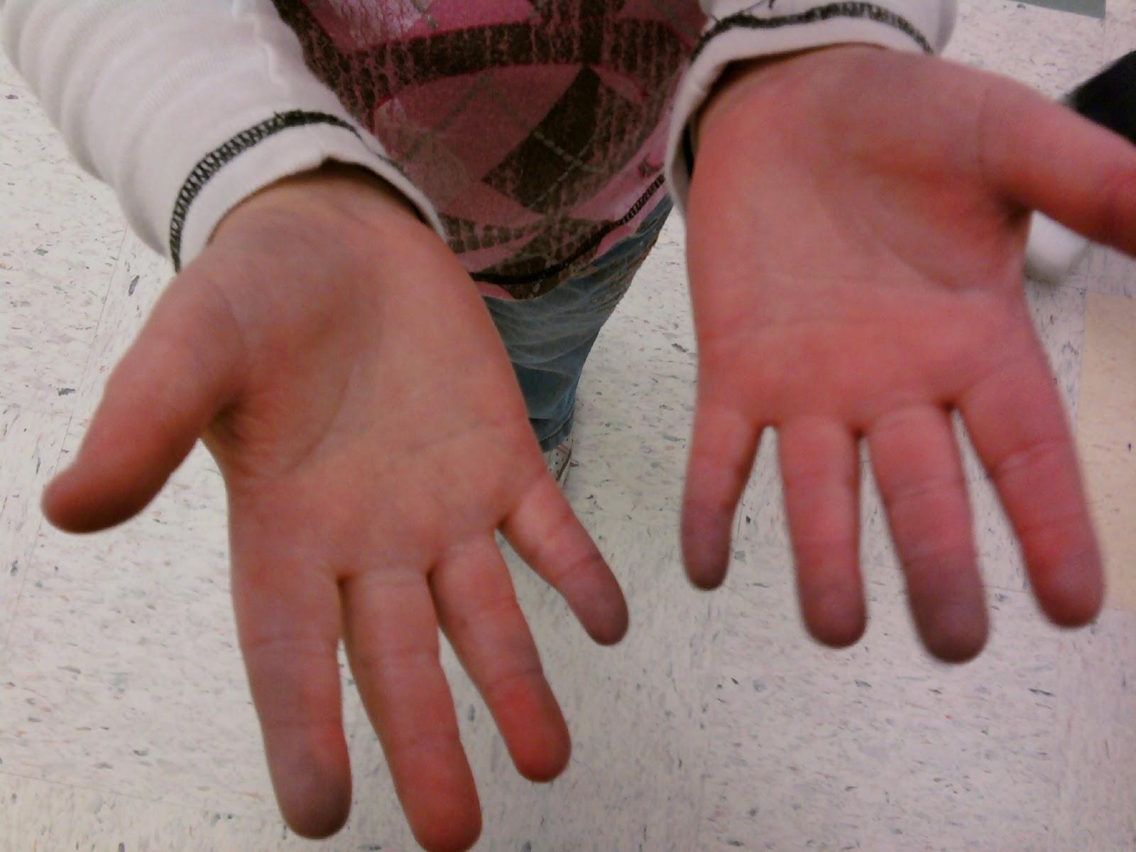 Raynaud's Hands