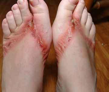 rash around new tattoo? help!!? | Yahoo Answers