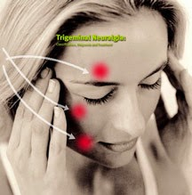 Trigeminal neuralgia homeopathy specialty treatment specialist doctor at chennai, Vivekanantha homeopathy clinic & psychological counseling center, Velachery, Chennai, panruti, cuddalore, Pondicherry, villupuram, Dr.senthil kumar best homeopathy specialist & famous psychologist in tamilnadu, india,