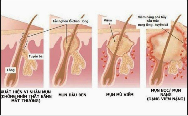 Các cách chữa viêm lỗ chân lông hiệu quả
