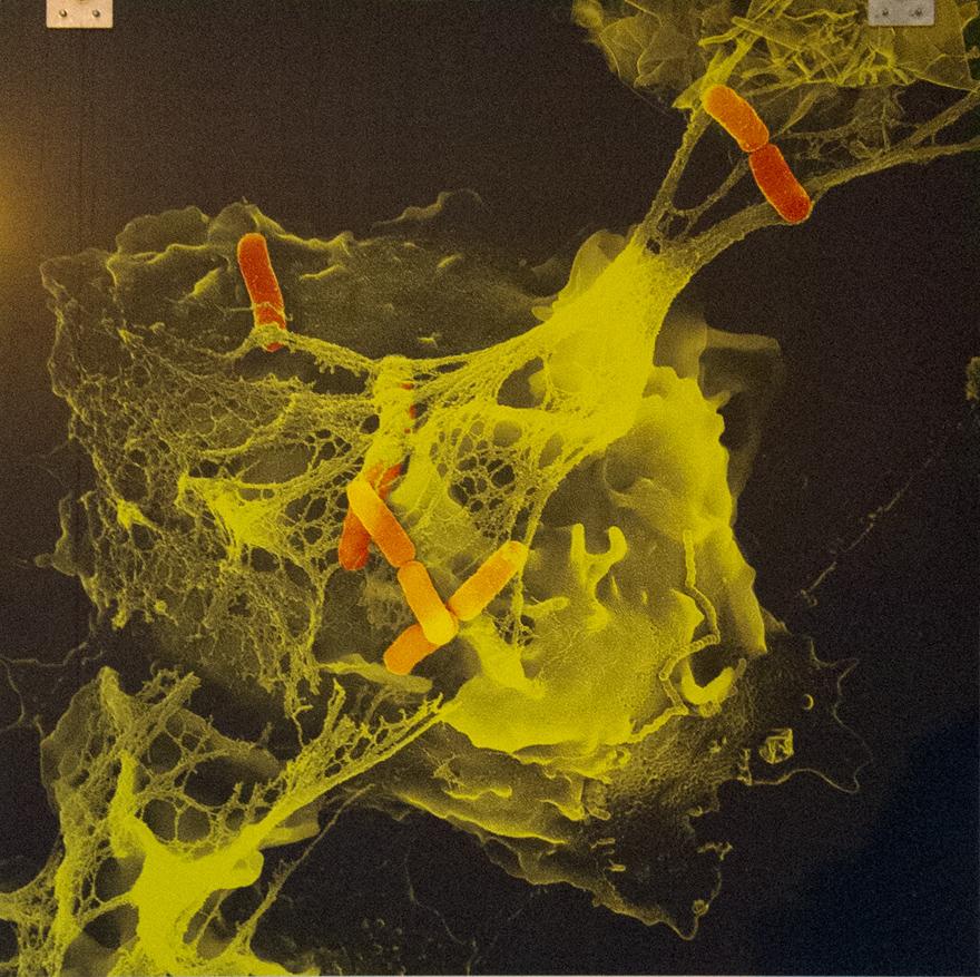 Cayendo en la red, foto de Volker Brinkmann, del Instituto Max Planck de Biología de las Infecciones, Berlin, Alemania.