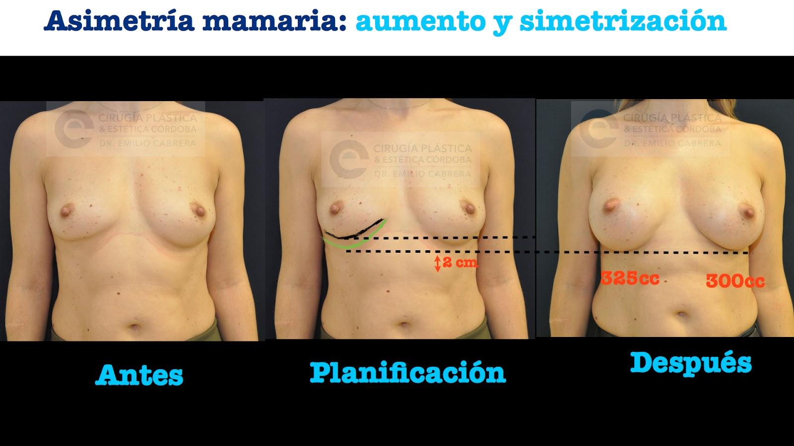 Las operaciones del cáncer de mama