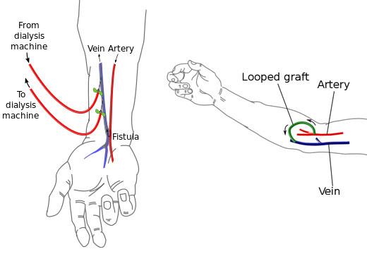 Arteriovenous (AV) Fistula/Shunt/Graft:36147 vs 36148,75791 ...