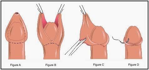 fimosis operacion