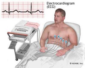 Jenis dan Fungsi Alat-alat Kedokteran - Elektrokardiogram (EKG)