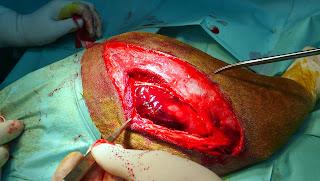 coagulo del hematoma fractura perro