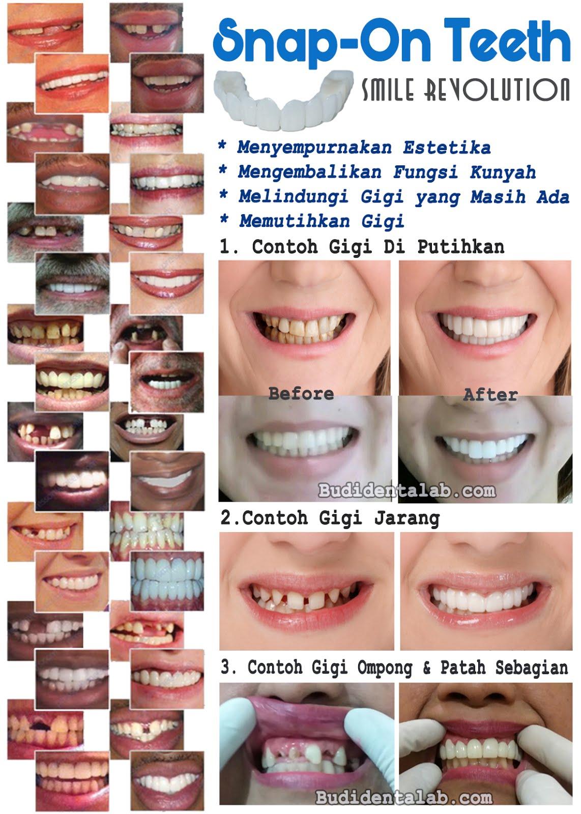 Snap On Senyum Cantik Dalam Sekejap Budi Dental