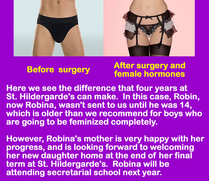Forced Feminization Picture Captions http://amber-goth.blogspot.com/2011/04/before-and-after-surgery.html