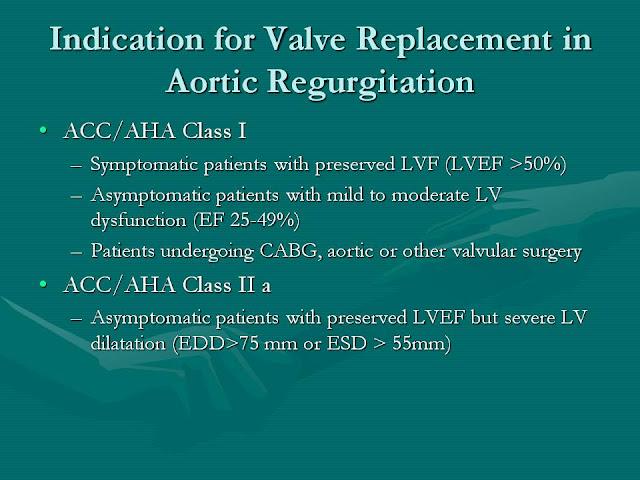 aortic valve essay