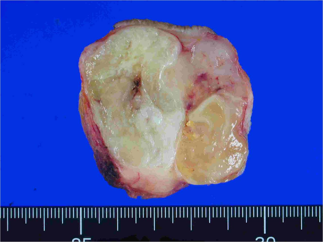 malignant breast tumor
