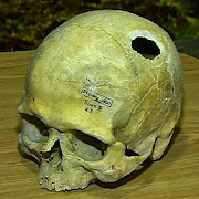 В Сибири на Алтае 3 тысячи лет назад умели делать трепанацию черепа