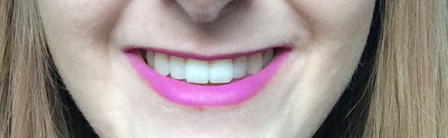 Throughneweyesx Blanx Teeth Whitening Review